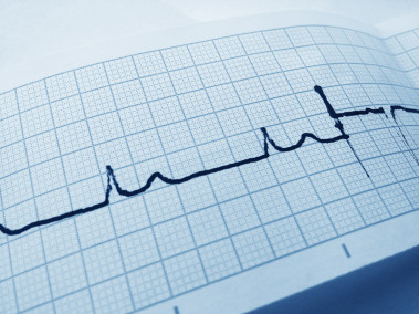 Blue Electrocardiogram Free Stock Photo