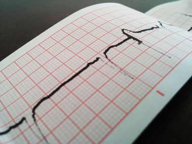 Electrocardiogram Free Stock Photo